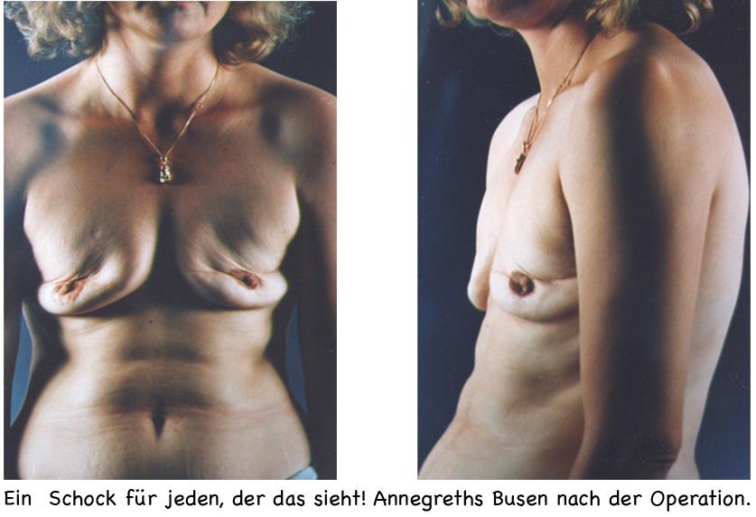 Stars vor und nach der Brust-Vergrößerung -